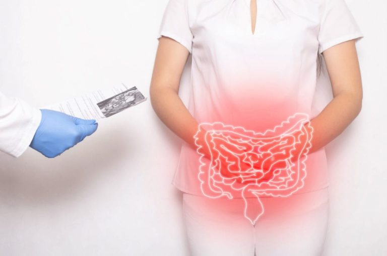 Ulcerative Colitis | Causes, Symptoms, Diagnosis, and Treatment